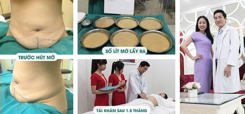 Hình ảnh Khách hàng trước - sau 1.5 tháng hút mỡ bụng không phẫu thuật bởi Bác sĩ Lương Ngọc