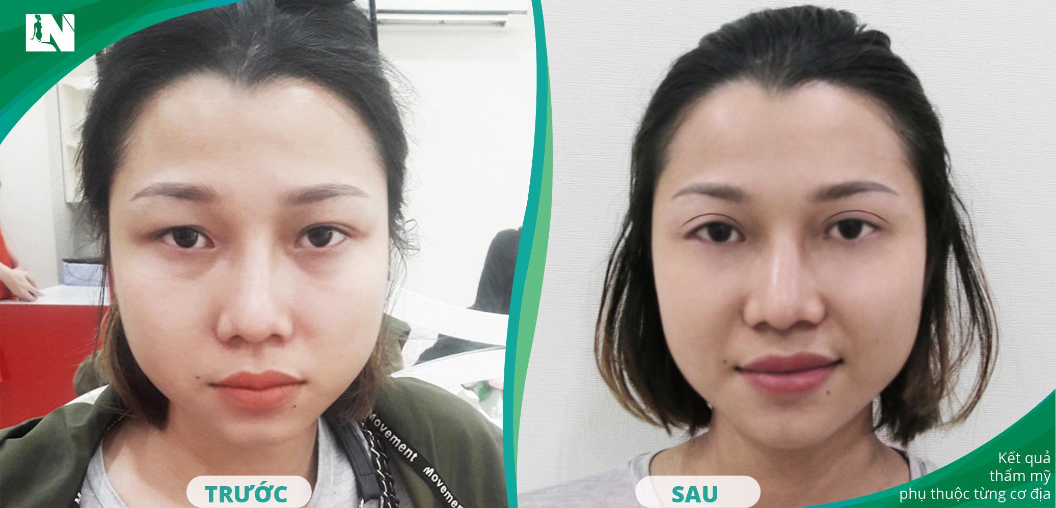 Hình ảnh Khách hàng trước - sau cắt mí mắt thực hiện bởi Bác sĩ Lương Ngọc tại bệnh viện