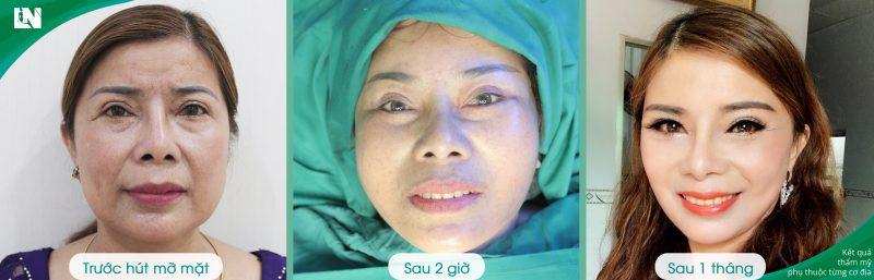 Hình ảnh Khách hàng trước - sau 1 tháng hút mỡ mặt Bác sĩ Lương Ngọc