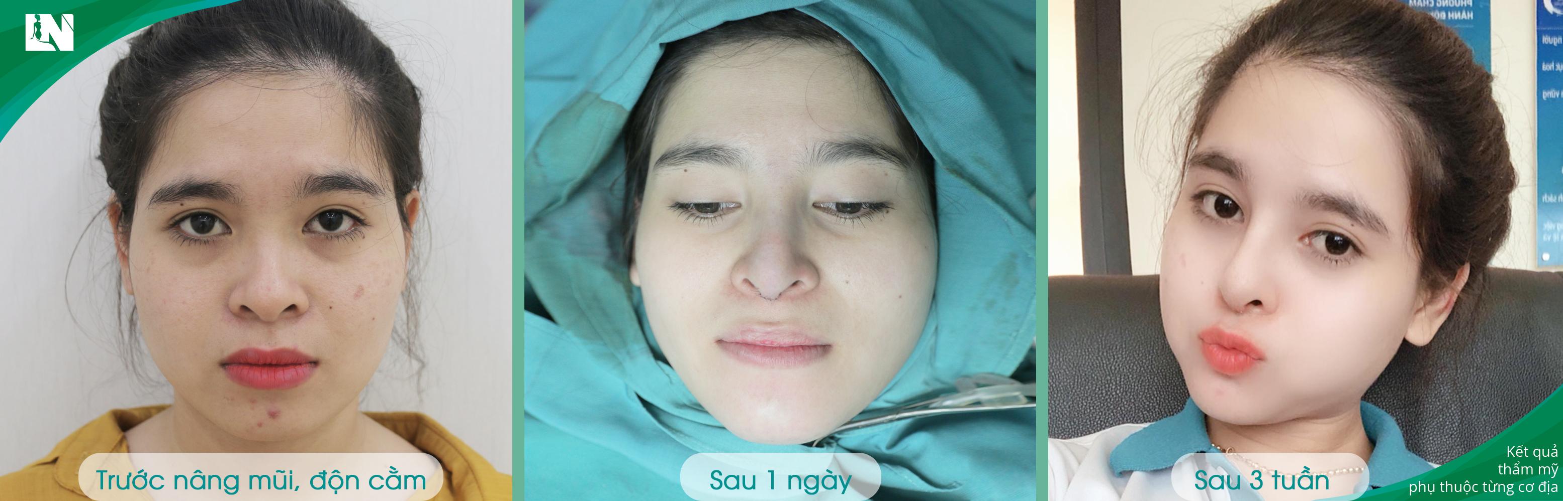 Khách hàng Thùy Linh sau 3 tuần nâng mũi S-Line kết hợp độn cằm V-Line bởi Bác sĩ Lương Ngọc