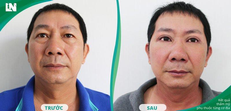 Cắt mí mắt, giải pháp hiệu quả giúp nam giới loại bỏ da dư và bọng mỡ ở mí mắt