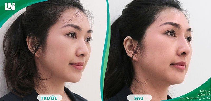 Hình ảnh Khách hàng tái khám sau khi thực hiện tiêm Filler mũi bởi Bác sĩ Lương Ngọc