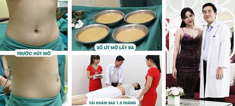 Hình ảnh khách hàng trước và sau 1,5 tháng hút mỡ của người mẫu Quỳnh Liên