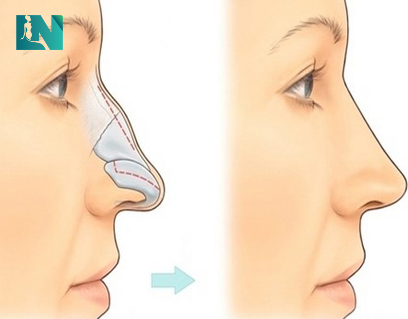 Nâng mũi gồ - giải pháp cho dáng mũi thẳng, thanh tú, hài hòa với khuôn mặt