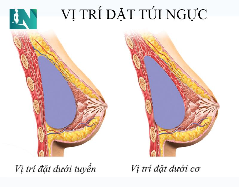 Phẫu thuật nâng ngực có 3 vị trí đặt túi ngực, nhưng chỉ có 2 vị trí đặt được áp dụng phổ biến