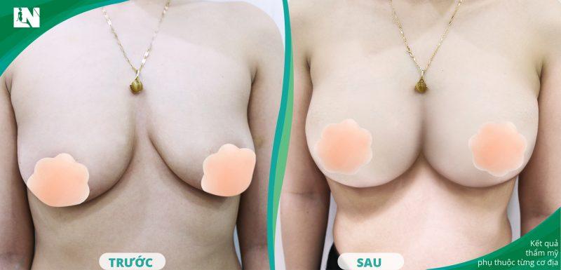 Cách nâng ngực chảy xệ tại nhà