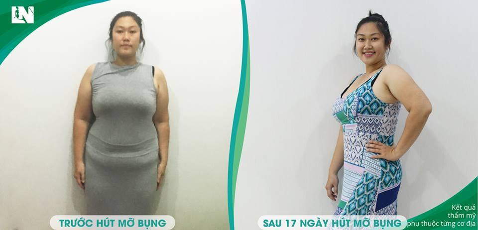 Hình ảnh chị Ngọc Hiền trước - sau 17 ngày hút mỡ không phẫu thuật vùngbụng, đùi, bắp chân