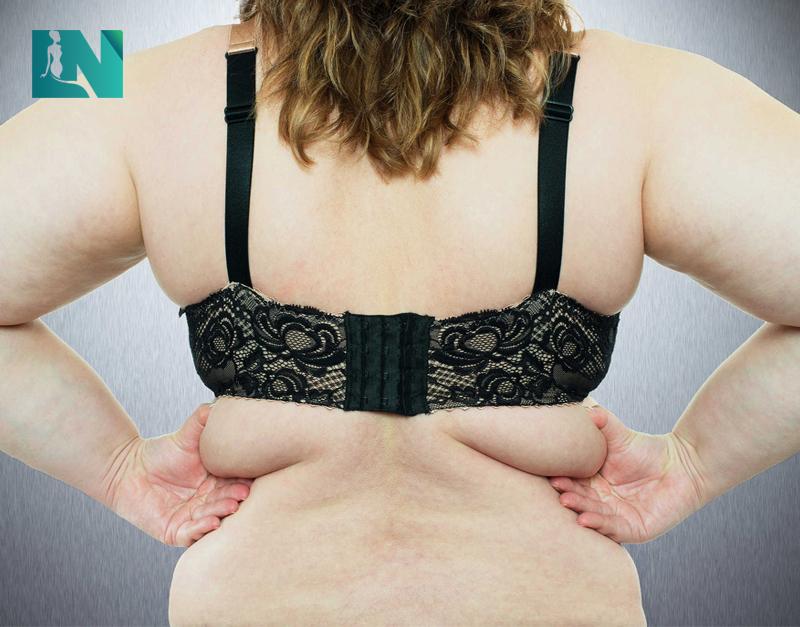 Hút mỡ lưng không phẫu thuật