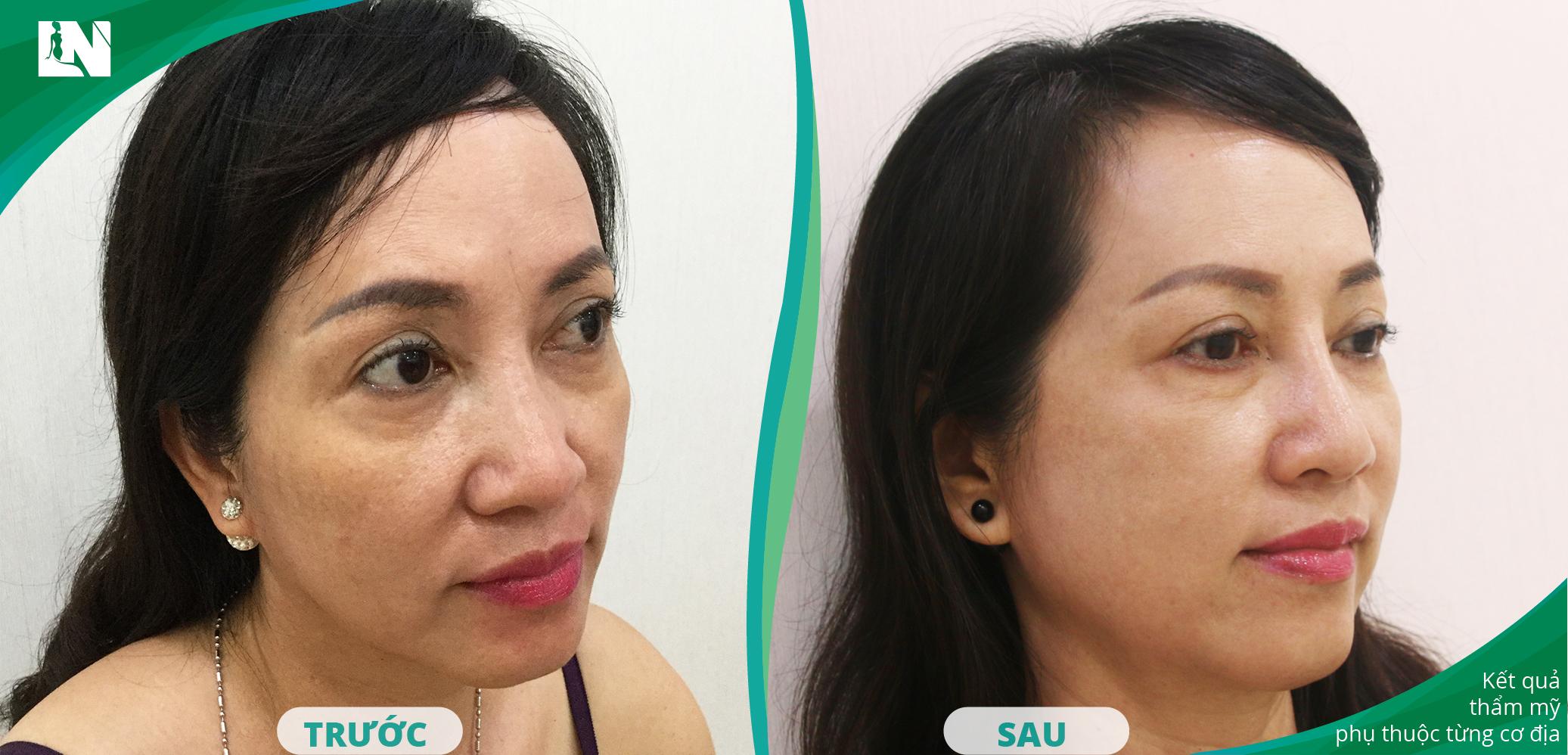 Hình ảnh Khách hàng trước - sau thực hiện nâng mũi bằng mỡ tự thân bởi Bác sĩ Lương Ngọc