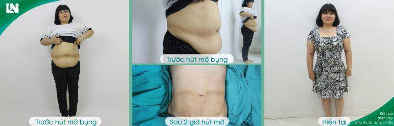 Hình ảnh cô Diệp Thúy trước - sau hút mỡ bụng tạo dáng thẩm mỹ bởi Bác sĩ Lương Ngọc