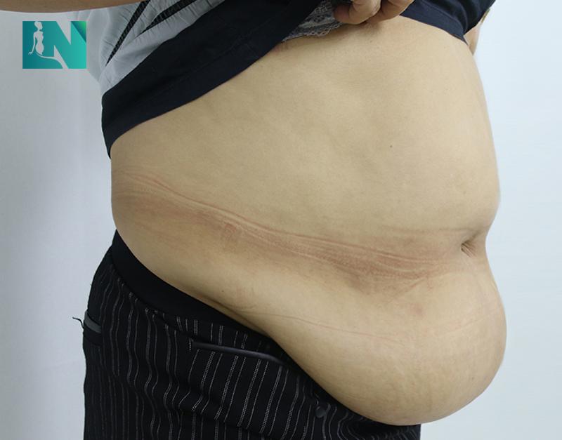 Hình ảnh vùng bụng côDiệp Thúy trước khi thực hiện hút mỡ tạo dáng thẩm mỹ